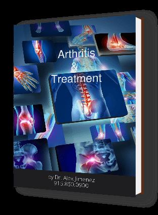 Arthritis Its Behandlinger Ebook Cover