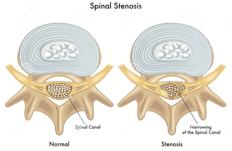 Blog Image 2 - Relief Spinal Stenosis Diagram