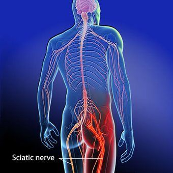 Blog Image 2 - Sciatica Diagram