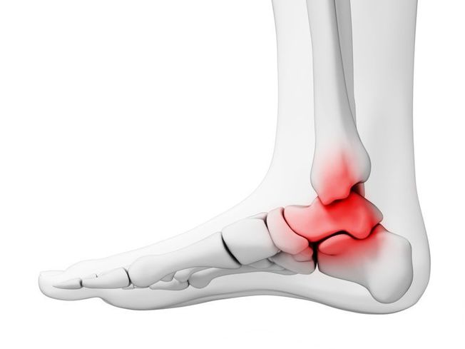 Ankle Arthritis: A Brief Overview