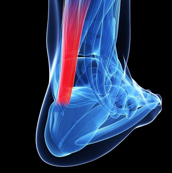 Why Your Doctor Won't Treat Achilles Tendonitis with Cortisone