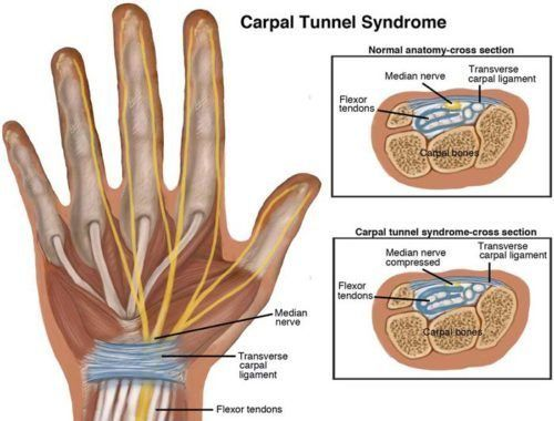 Carpal Tunnel Syndrome ElPasoChiropractor