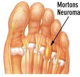 Morton's Neuroma Diagram - El Paso Chiropractor