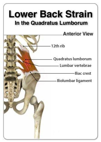 quadratus lumborum pain | el paso, tx doctor of chiropractic muscle cramp diagram posterior shoulder muscle diagram #15