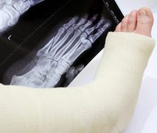How to Heal a Broken Ankle
