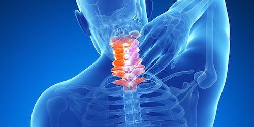 Whiplash Improvement with Chiropractic