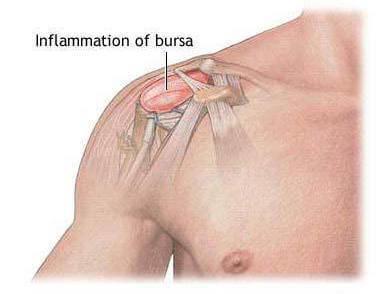 La bursitis del hombro - El Paso Quiropráctico