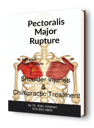 blog picture of anatomical pectoralis major rupture