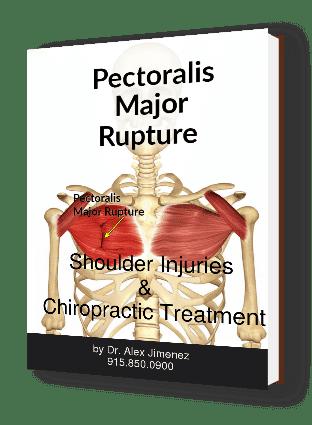 blog de imágenes de ruptura mayor pectoral anatómico
