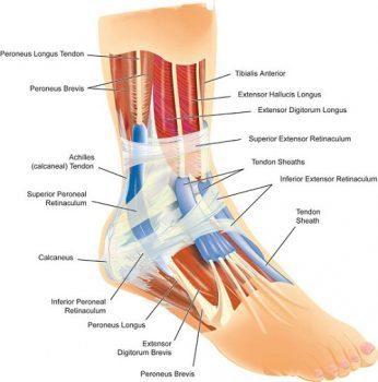 Diagramma della distorsione della caviglia