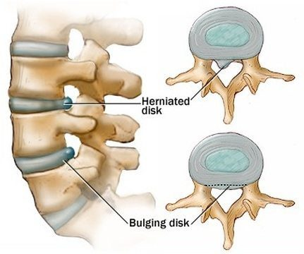 11860 Vista Del Sol, Ste. 128 Chiropractic Posterior Adjustments for Bulging Discs