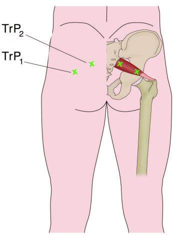 Myofascial Trigger Point Location - El Paso Chiropractor