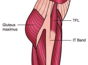 TFL e ITB Anatomía Diagrama - El Paso Quiropráctico