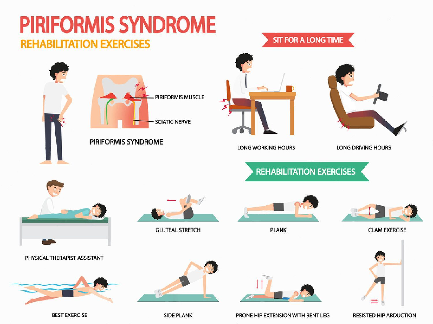 Causes des exercices de rééducation du syndrome de Piriformis piriformis