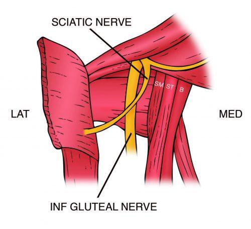 Anatomía del tendón de la corva proximal - El Paso Quiropráctico