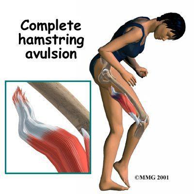Tendón de la corva completa avulsión en vivo - El Paso Quiropráctico