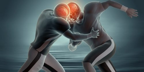 Blog Image Concussion Demonstration e