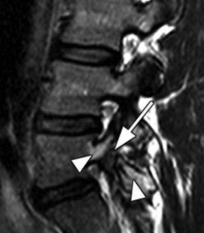 Imagen de resonancia magnética - El Paso Quiropráctico
