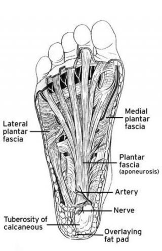 conservative care for plantar fasciitis in athletes