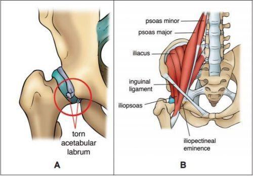 Diagramma anatomico dell'anca - Chiropratico di El Paso