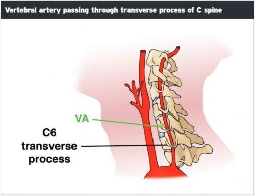 Pasando arteria vertebral apófisis transversa - El Paso Quiropráctico