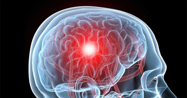 blog picture of brain graphic with concussion