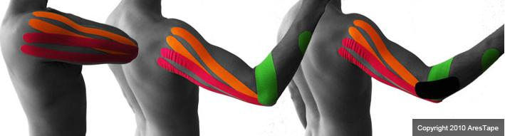 blog picture of male upper body with kinesiotape applied to shoulder and elbow