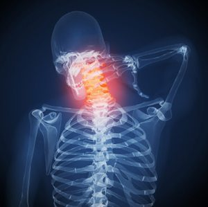 blog picture of x-ray skeleton grabbing back of neck in pain
