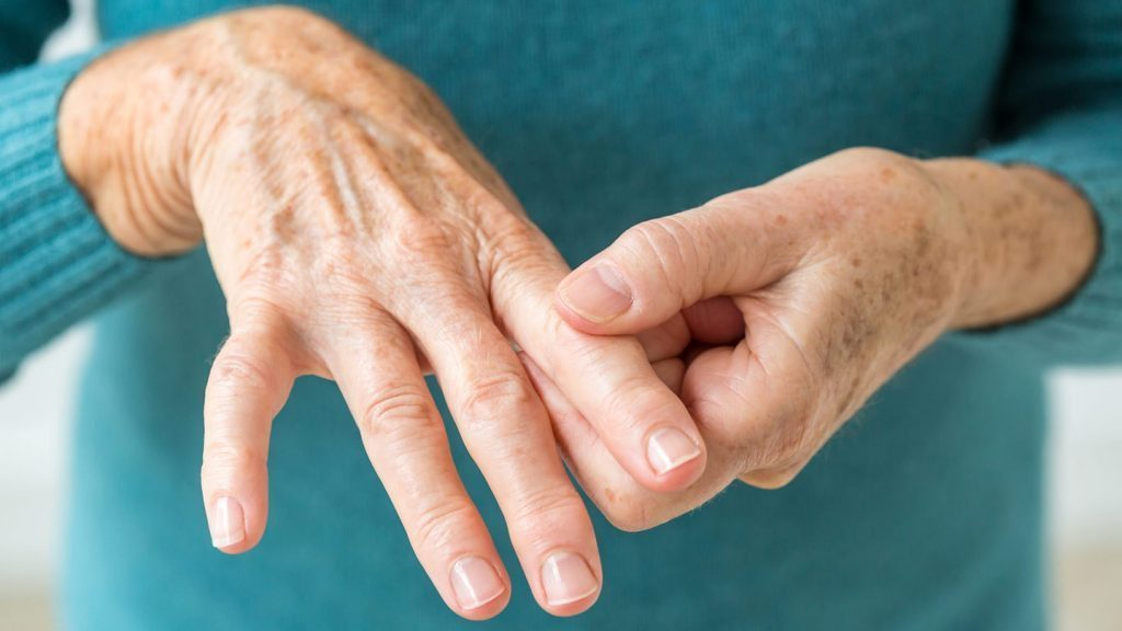 blog picture of woman's hands with arthritis