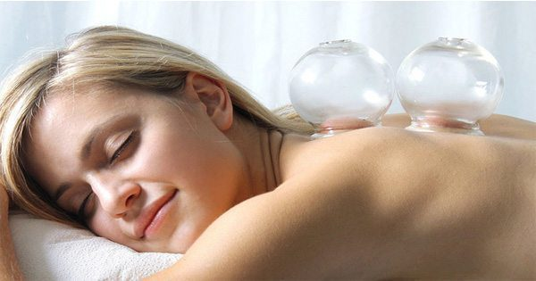 blog picture of lady getting a cupping treatment