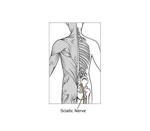 sciatic nerve wu aa