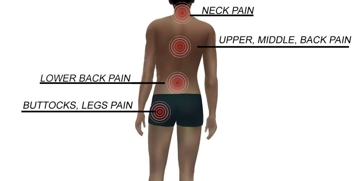 blog illustration of person with various types of back pain