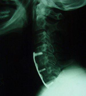 頸椎プレートスクリュー