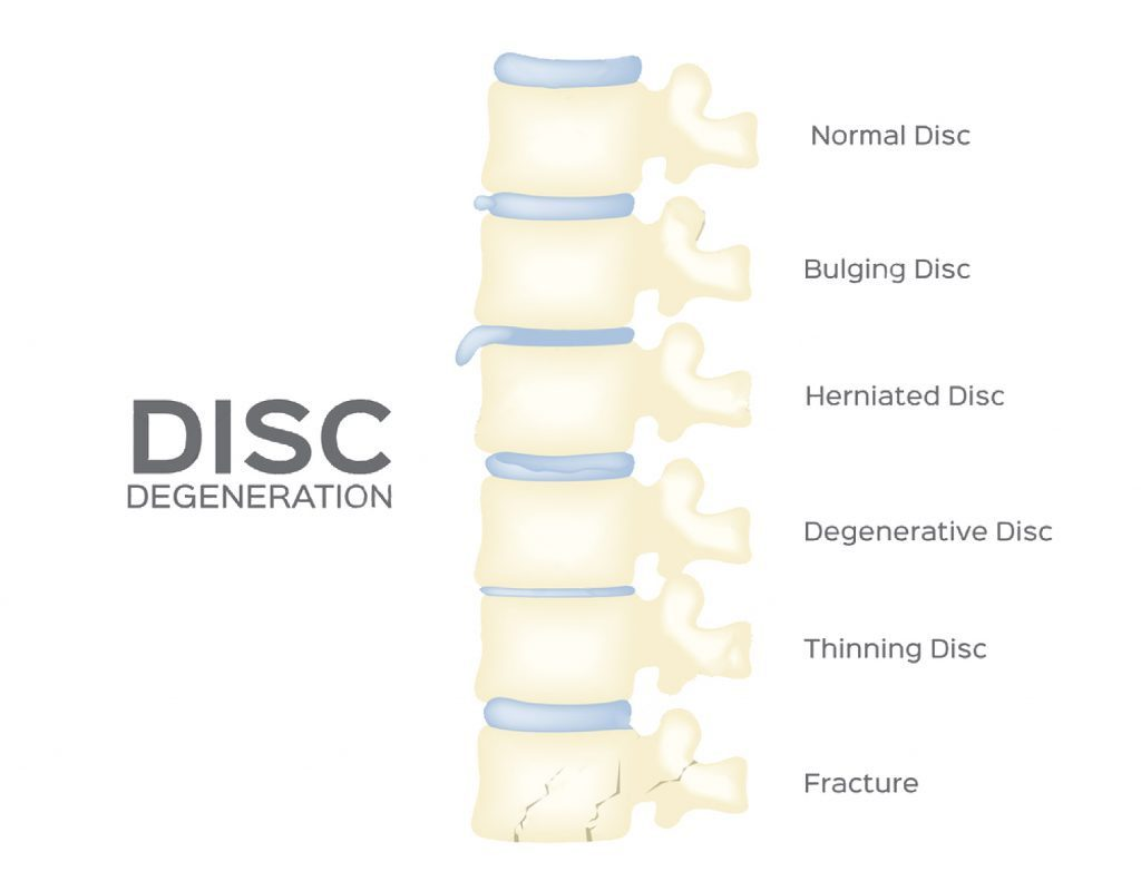 spine disc degeneration vector back bone organ anatomy