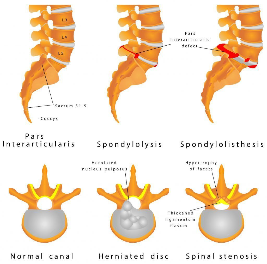 spine fracture spondylolysis spondylolisthesis is a defect in the bony ring comprising