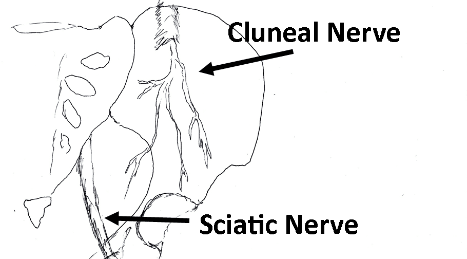 Anatomy20cluneal20nerve.png