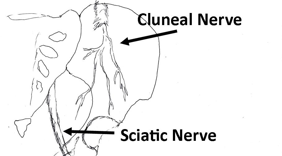 diagram of sciatic nerve pain