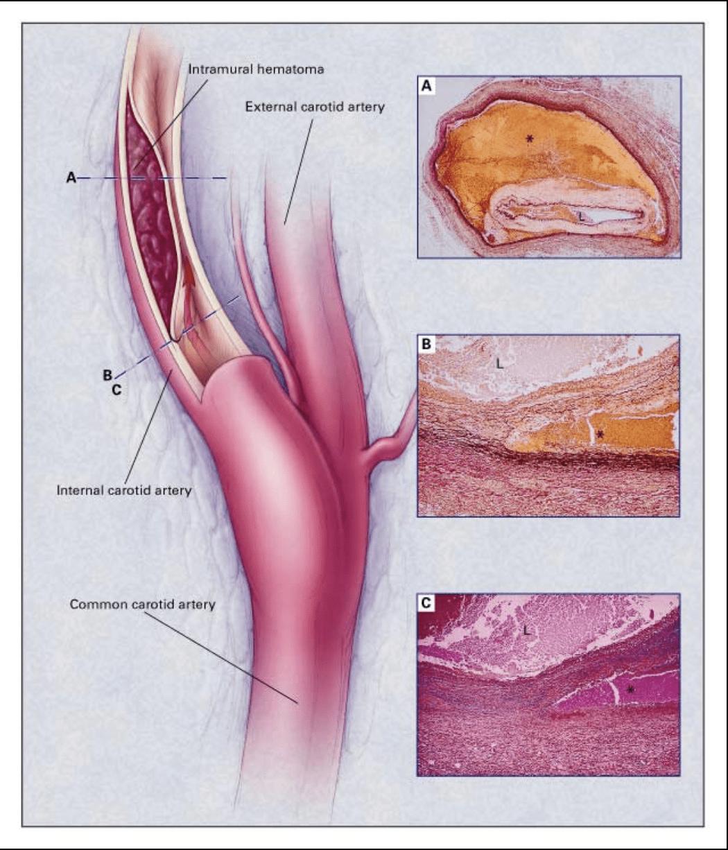 Intramural hematoma