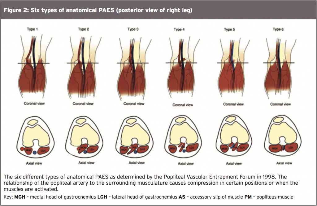 Popliteal Artery Entrapment: A Mysterious Syndrome