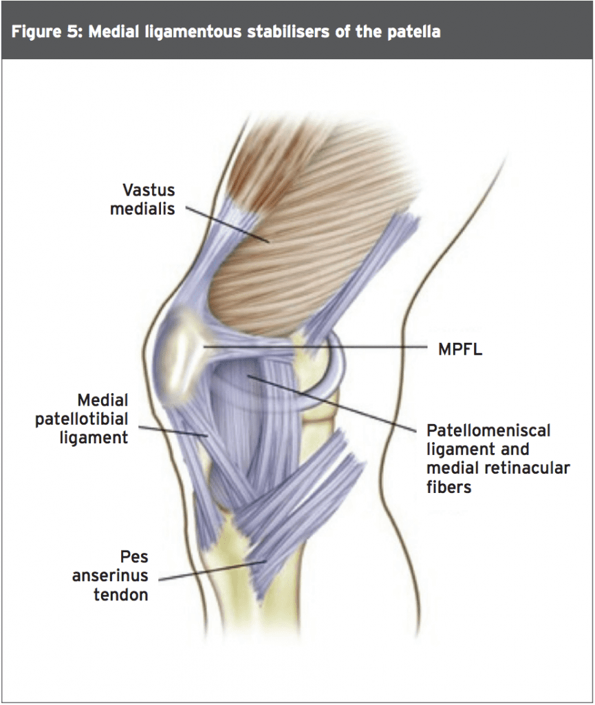 Patella Dislocation: Advice For The Young At Heart