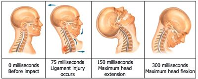 Permanent Ligament Damage from Whiplash Injuries - El Paso Chiropractor
