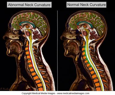 Abnormal Neck Curvatures - El Paso Chiropractor