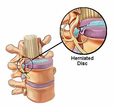 Anatomy of Herniated Discs - El Paso Chiropractor