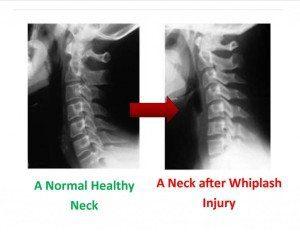 Antes y Después del latigazo cervical - El Paso Chiropractor