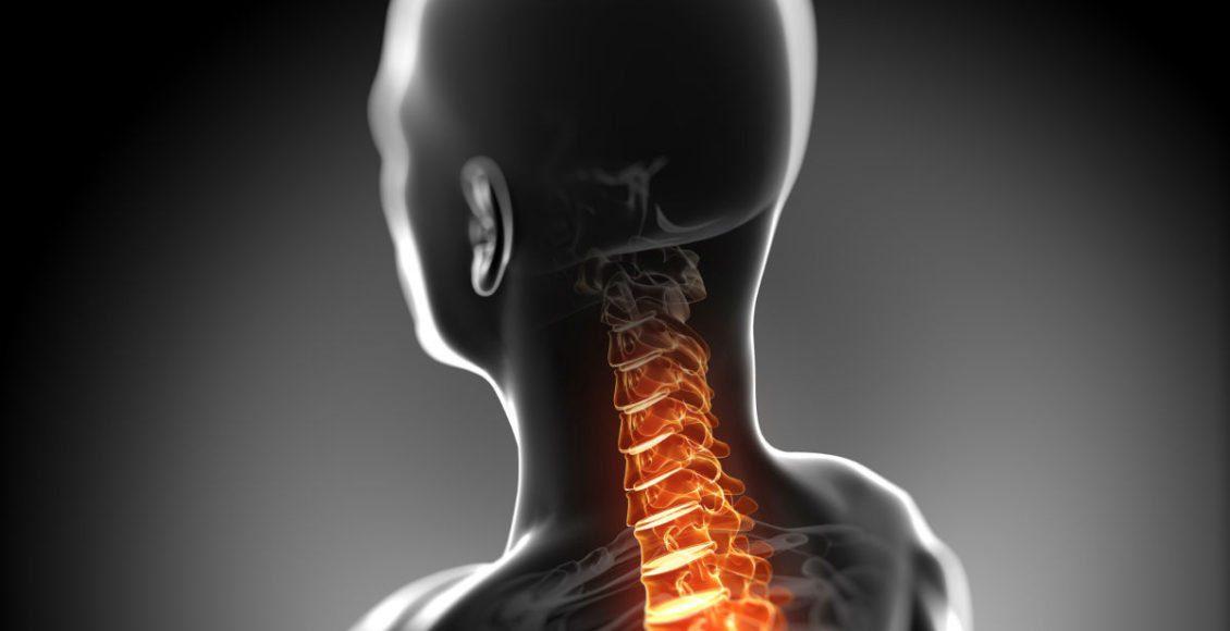 ElPasoNeckChiropractor:SpinalCordDamage&Injury ElPasoChiropractor
