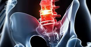 El Paso Scientific Specialist: Lumbar Herniated Discs and Sciatica