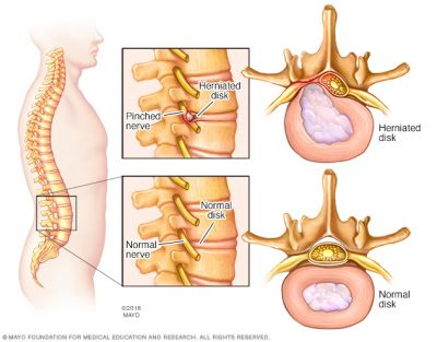 Herniated Disc Diagram - El Paso Chiropractor