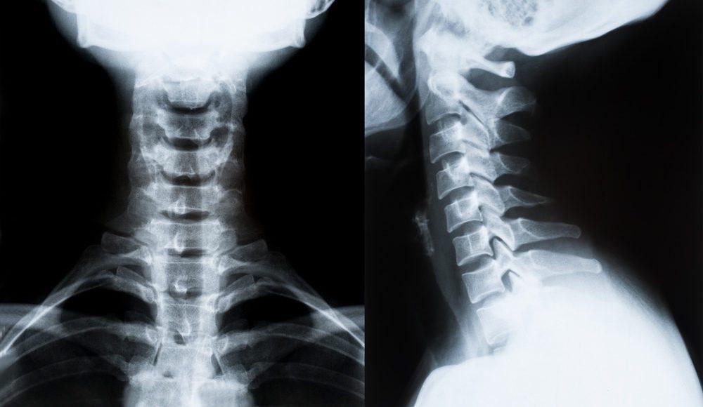 LossofCervicalLordosisfromWhiplash&Injuries ElPasoChiropractor
