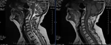 Neck Damage in MRI - El Paso Chiropractor