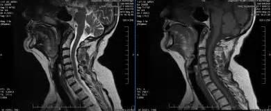 Kerusakan Leher di MRI - Chiropractor El Paso